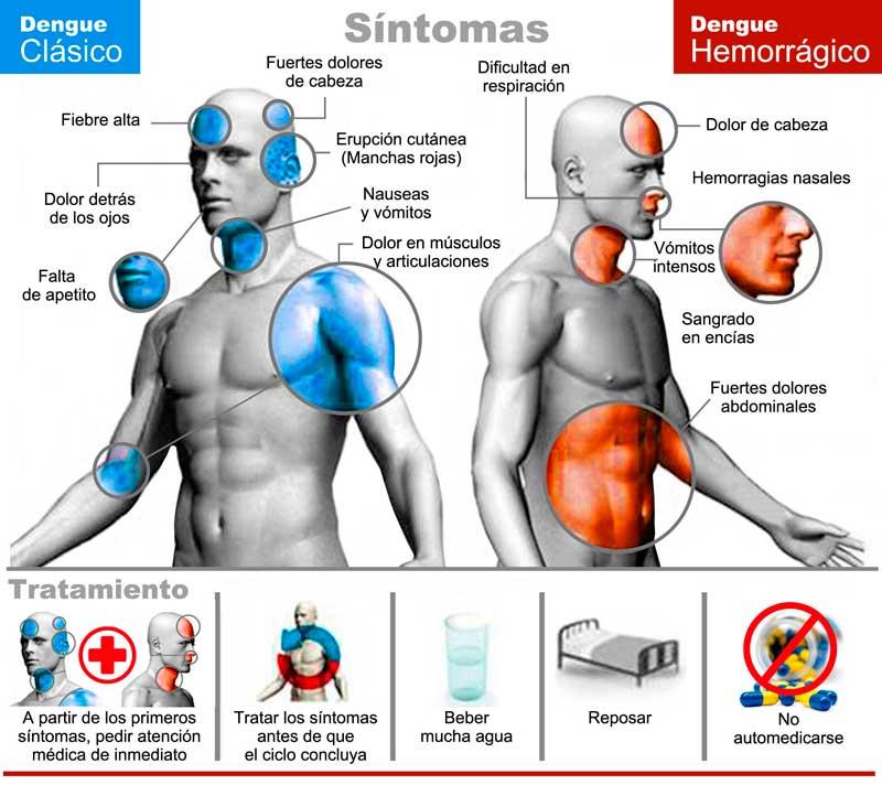 Sintomas del dengue